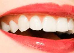 Afbeeldingsresultaat voor problemen met een glimlach