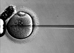 Normal_bevruchting_ivf_in_vitro