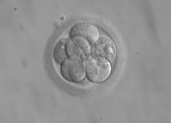 Normal_embryo